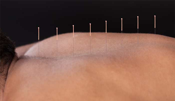 We offer Acupuncture Treatments