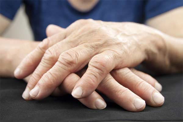 We offer Arthritis Management
