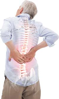 Lower Back Arthritis