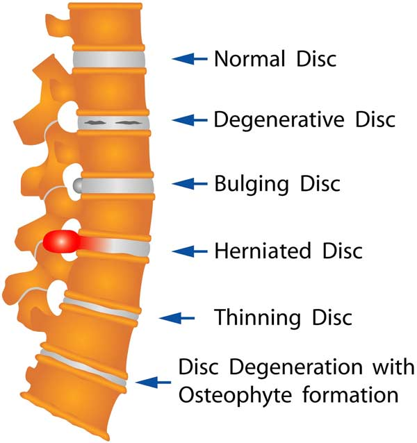 Common Disc Injuries