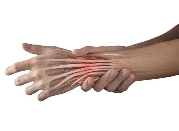 Extensor Tendons in the hand