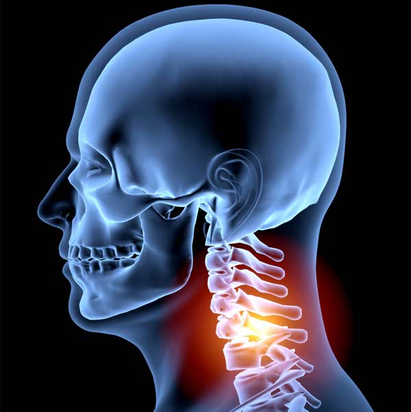 AM&WC offers many treatment options for Neck Pain