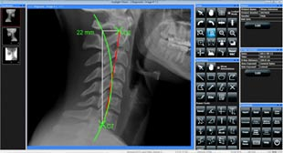 Beavercreek Chiropractic now offers Digital X Rays Analysis